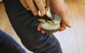 Genou, hanche, épaule, cheville, rachis, ligament... FH Industrie est un généraliste de la prothèse qui a développé une gamme spécifique pour le marché américain. Photo : Pierre Gicquel
